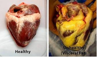 visceral fat, fat, fat tissue, heart, heart health, cardiovascular disease, cardiovascular health, stroke, heart attack, heart attack risk, stroke risk,